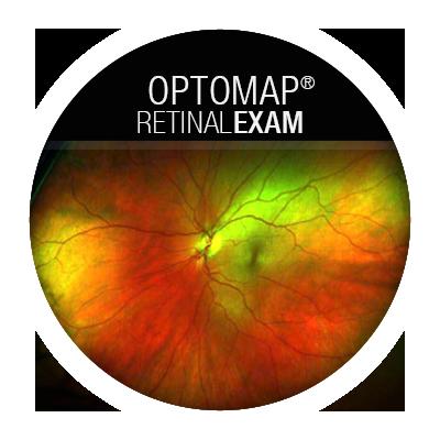 OptomapRetinalExam